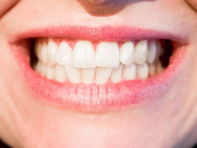teeth-1652976__480